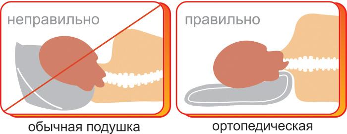 Положение головы и шеи во время сна и отдыха
