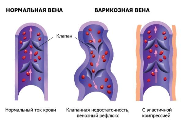 Нормальная и варикозная вены
